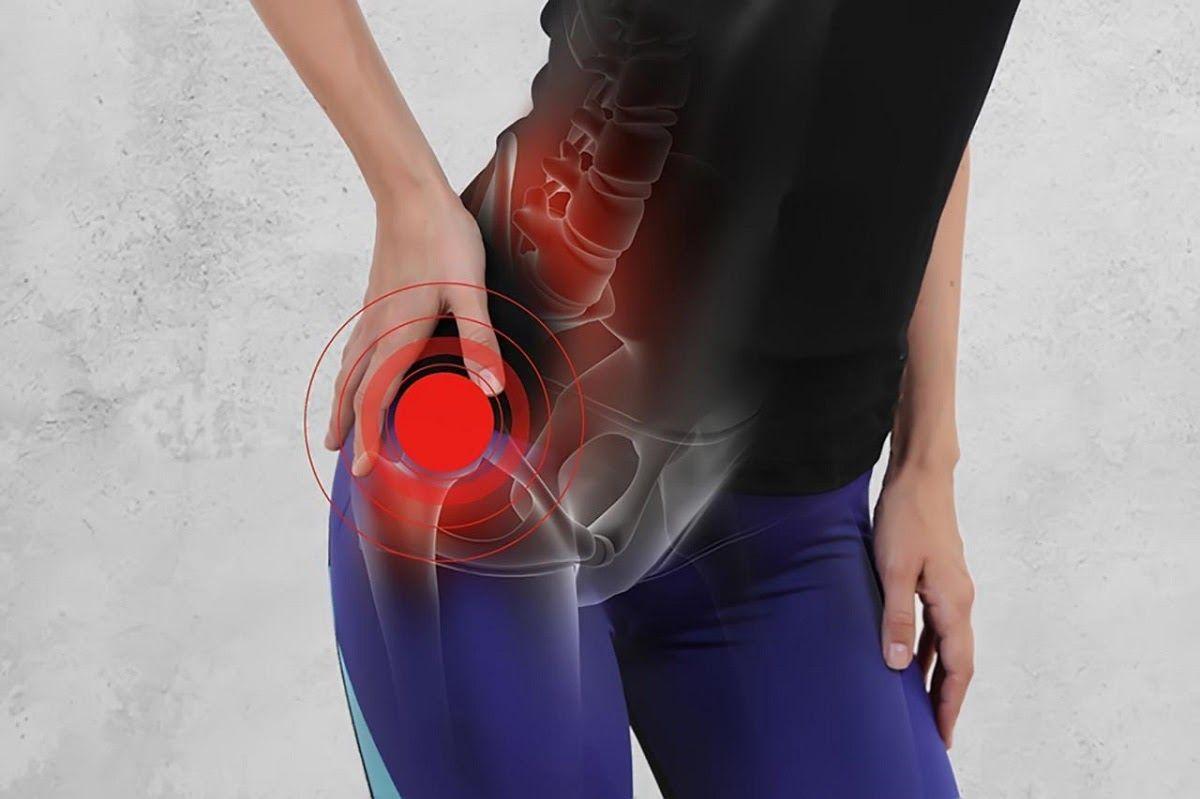 Chấn thương là nguyên nhân gây bệnh viêm khớp háng ở phụ nữ
