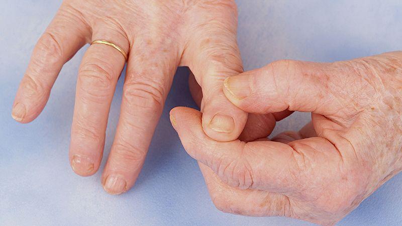 Khớp tay bị viêm gây khó khăn trong chuyển động khớp
