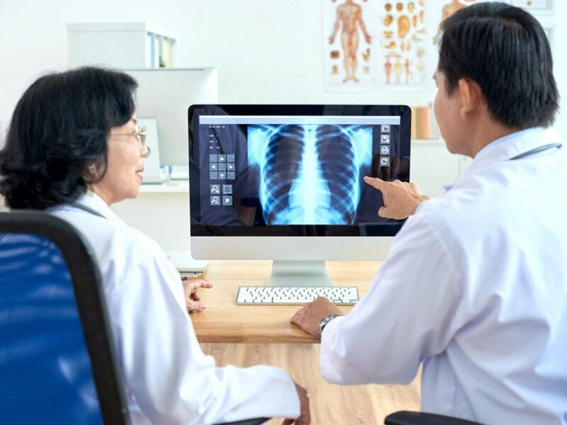 Phương pháp chụp X - quang để chẩn đoán bệnh gai cột sống