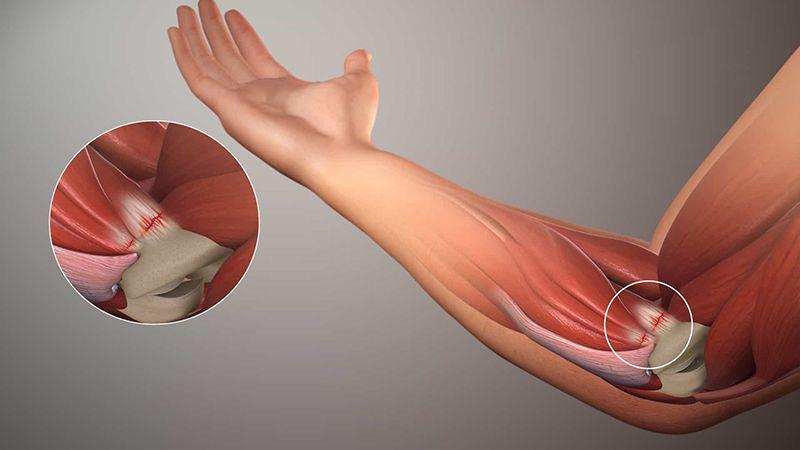Hình minh họa khớp khuỷu tay phải gặp vấn đề