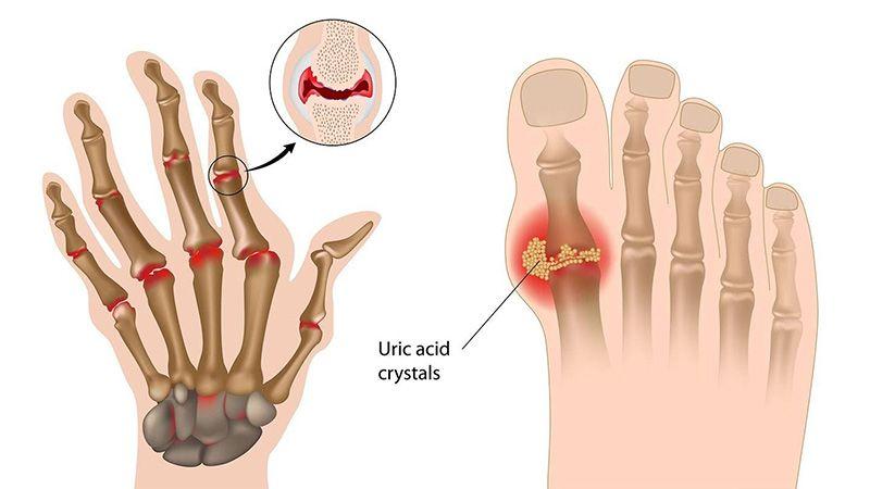 Sưng ngón chân cái ở bệnh gout