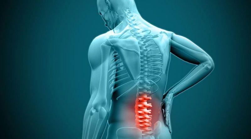 Tìm hiểu về căn bệnh thoát vị đĩa đệm có chữa được không?