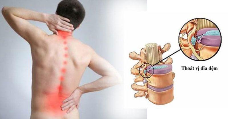 Các cơn đau là biểu hiện chung ở bệnh nhân thoát vị đĩa đệm