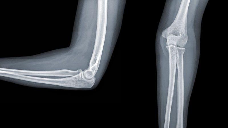 Chụp X- Quang là phương pháp thông dụng để phát hiện ra những dấu hiệu bất thường của xương
