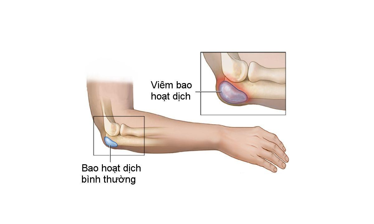 Bao hoạt dịch nằm ở mặt sau của khớp khuỷu tay bị viêm gây ra các cơn đau