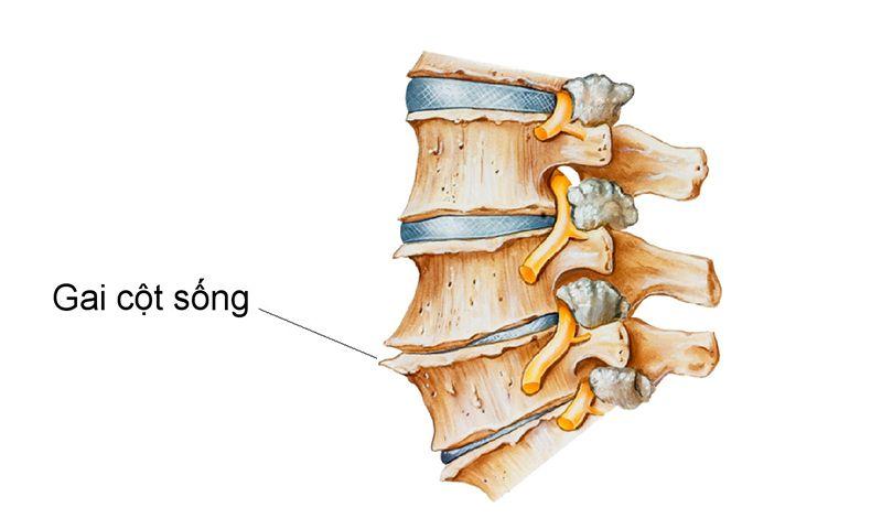 Bề mặt xương nhô ra tạo thành gai xương