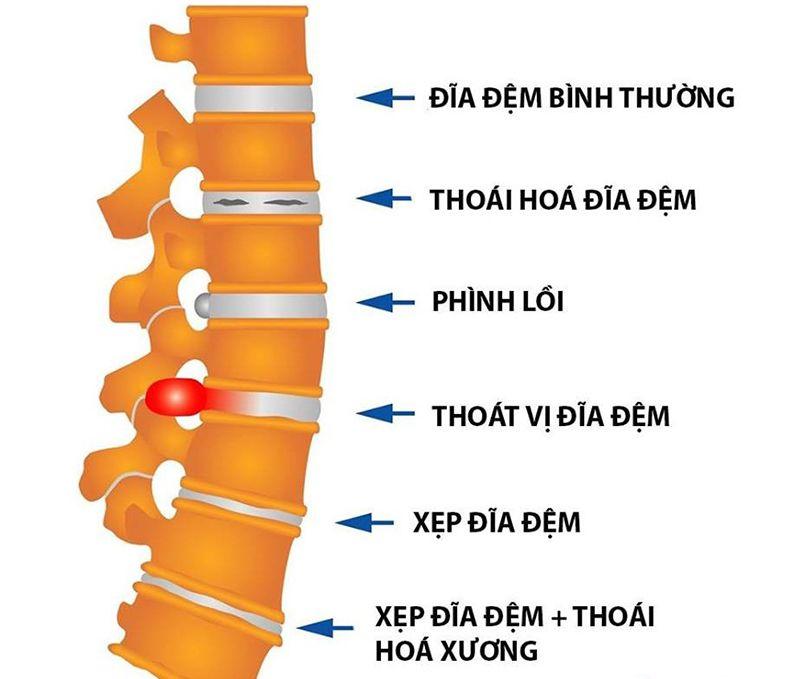 Gai cột sống là tình trạng các mẫu xương mọc dài ra ma sát với các bộ phận xung quanh