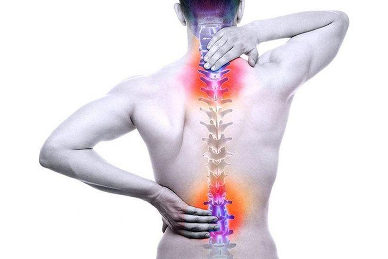 Gai cột sống thường gây đau đớn vùng vai gáy và lưng