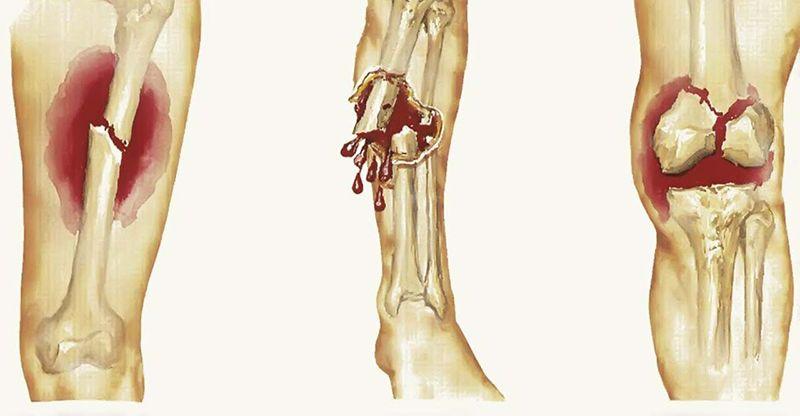 Ung thư xương là biến chứng nguy hiểm của gai cột sống