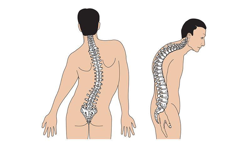 Cột sống vẹo, gù do biến chứng của gai cột sống thắt lưng