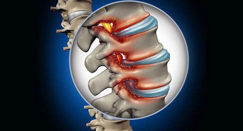 Nhận biết được các biểu hiện, triệu chứng của bệnh sớm để đưa ra hướng điều trị kịp thời