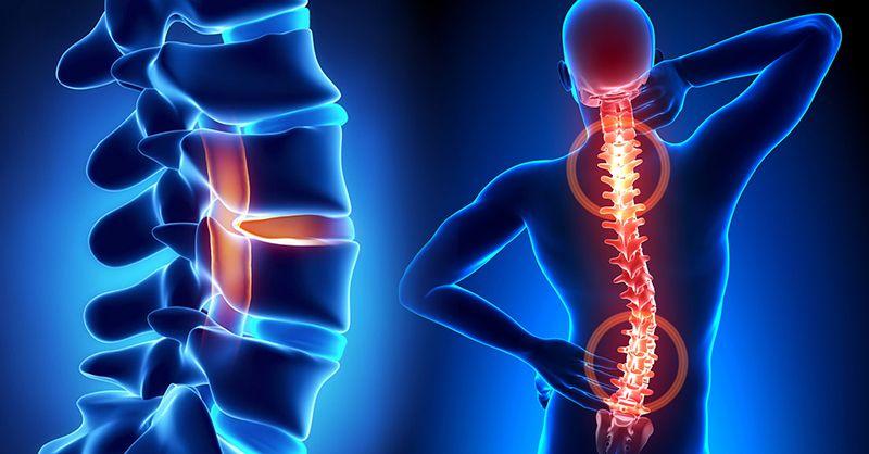 Thoái hóa đĩa đệm cột sống thắt lưng có thể gây mất cấu trúc thẳng đứng của cột sống