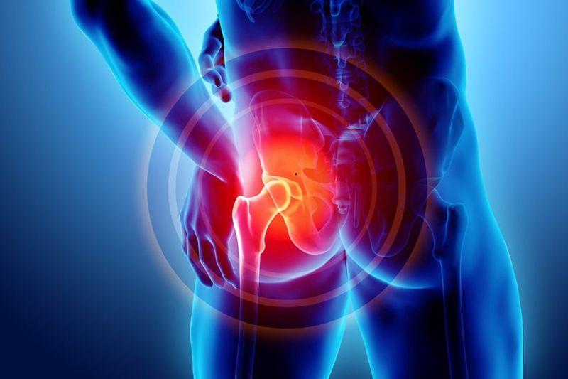 Đau nhức ở hông, đùi trong, xương chậu là biểu hiện rõ ràng nhất