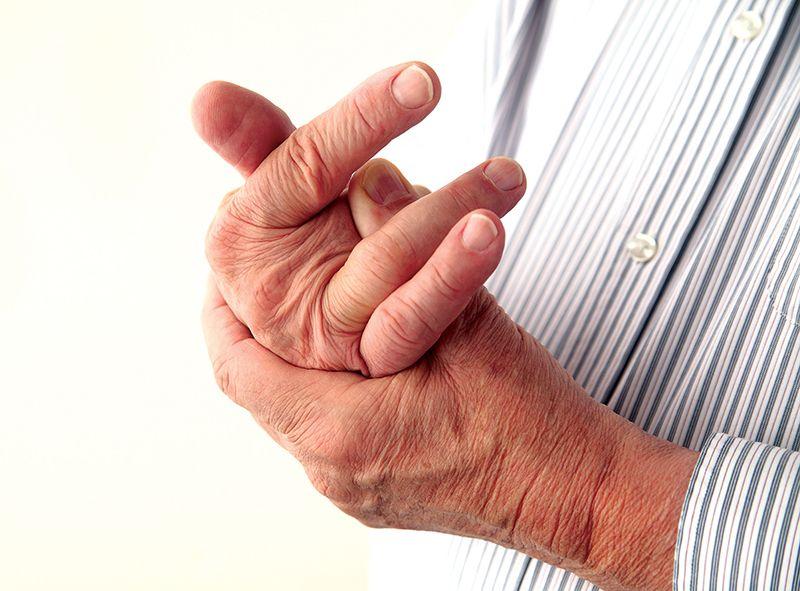 Thoái hóa khớp ngón tay gây sưng nề và đỏ tấy