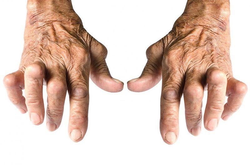 Thoái hóa khớp tay thường gặp ở người lớn tuổi và gây biến dạng khớp