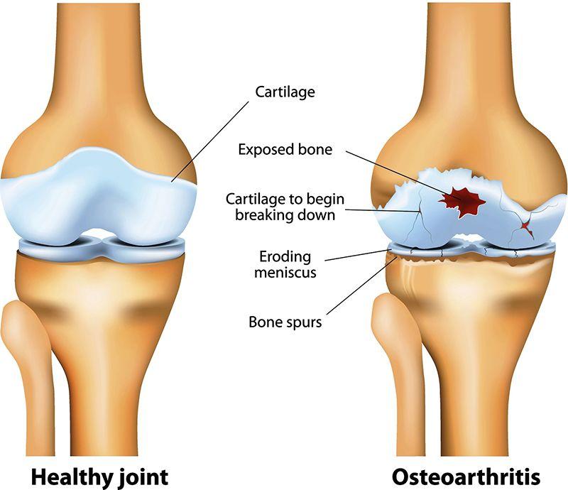 Các khớp xương theo thời gian sẽ bị bào mòn và suy yếu chức năng dẫn đến thoái hóa