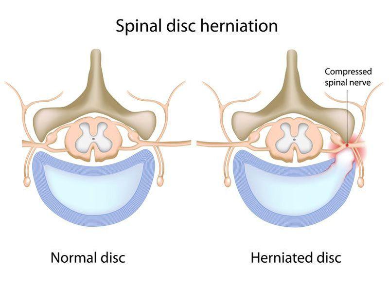 Thoát vị đĩa đệm là hiện tượng đĩa đệm bị lệch ra khỏi vị trí ban đầu trong cột sống