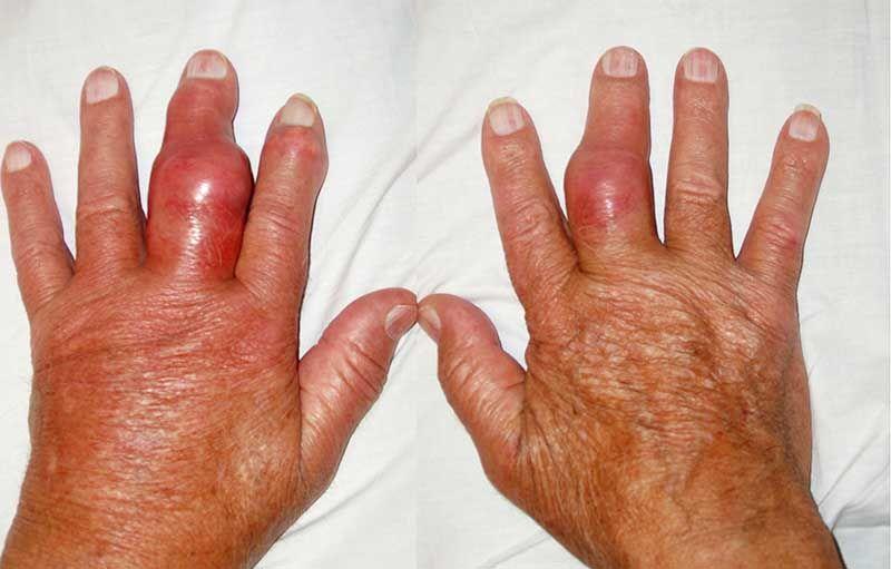 Triệu chứng của bệnh gút tiêu biểu là biến dạng các khớp