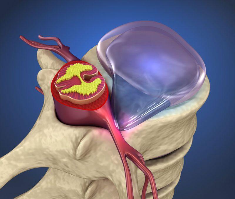 Ứng dụng vi phẫu thuật để điều trị thoát vị đĩa đệm