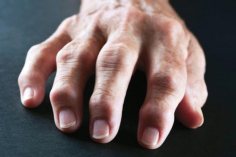 Các khớp bị sưng và đau đớn khi xảy ra các phản ứng viêm