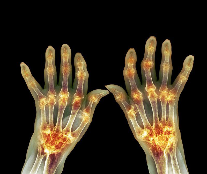 Viêm khớp dạng thấp xảy ra ở tất cả các khớp trên cơ thể gây đau đớn và hạn chế vận động ở người bệnh