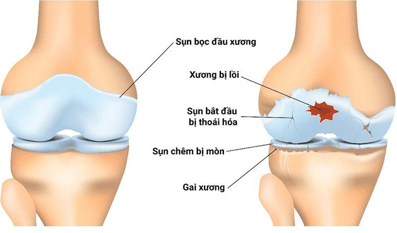 Lớp sụn xương bị tổn thương nguy cơ của bệnh viêm khớp gối