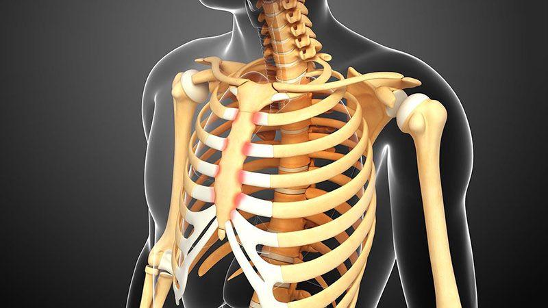 Viêm sụn sườn gây cảm giác đau nhói ở ngực người bệnh