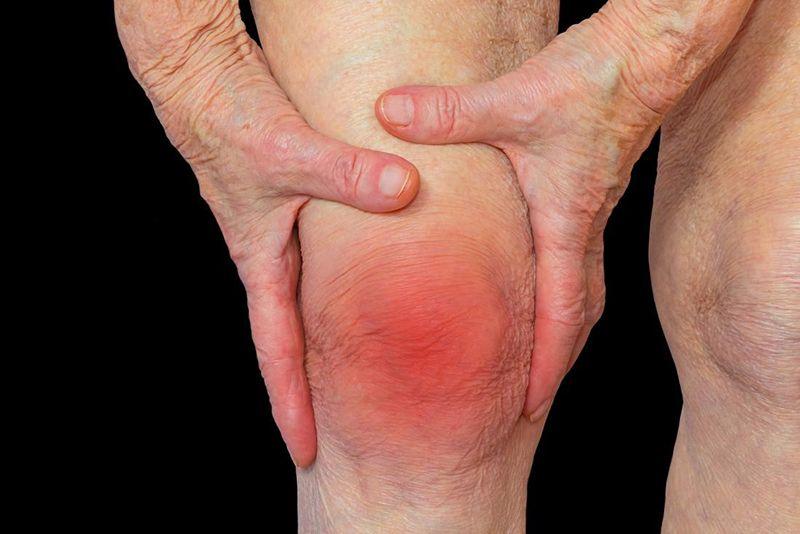 Viêm khớp gối gây sưng đỏ tại vị trí tổn thương