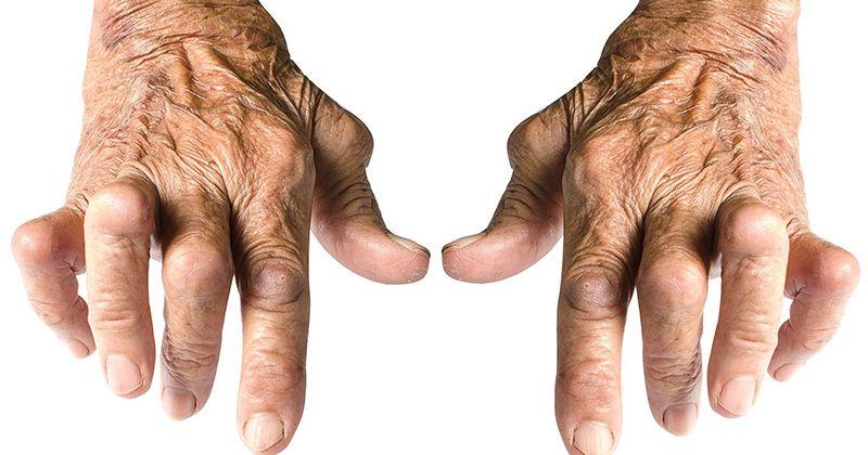 Viêm khớp dạng thấp đối xứng ở bàn tay