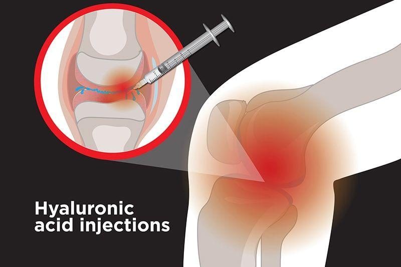 Điều trị thoái hóa khớp gối bằng Hyaluronic Acid