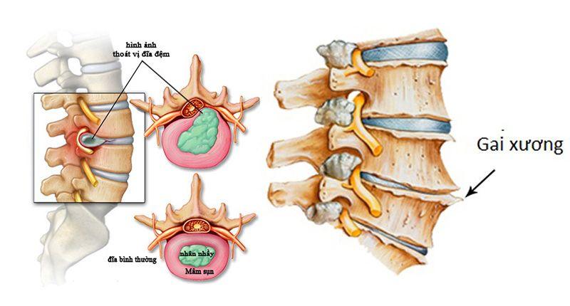 Hình ảnh đĩa sụn và các gai xương