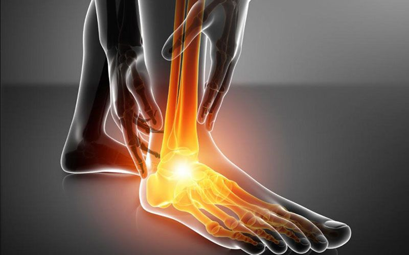 Khô khớp cổ chân là tình trạng thiếu dịch bôi trơn cho sự hoạt động của khớp