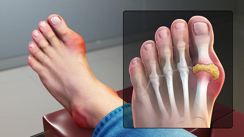 Biểu hiện đặc trưng: sưng đỏ ở khớp ngón chân cái