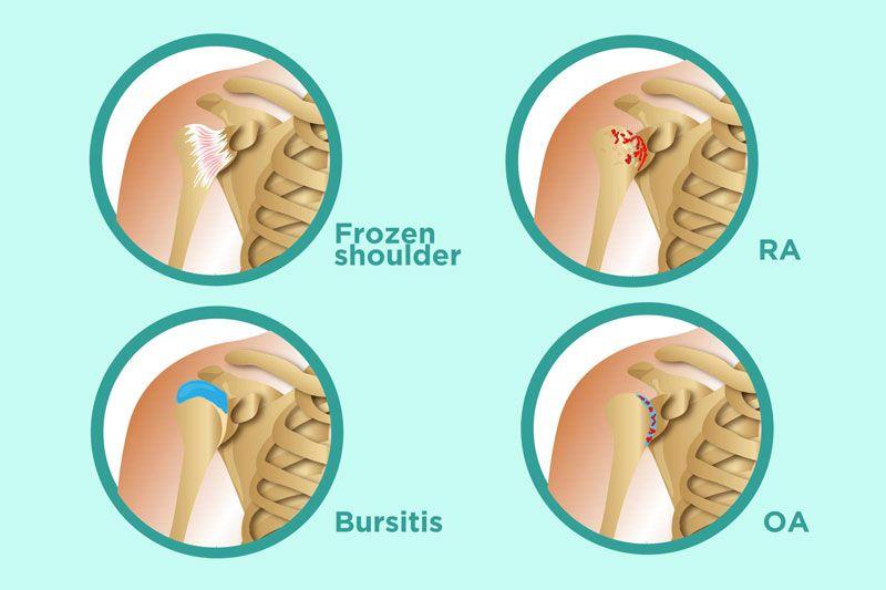 Bệnh viêm khớp vai hay còn được biết đến là bệnh viêm quanh khớp vai