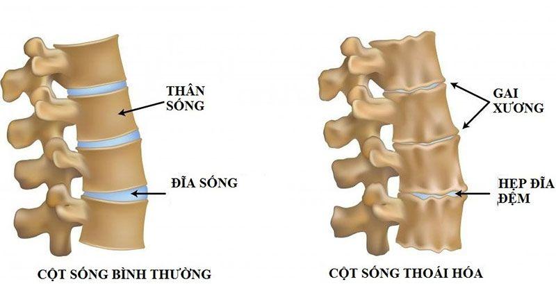 Phần đĩa tròn từ sụn nằm giữa hai đốt sống có vấn đề là nguyên nhân gây nên bệnh gai cột sống