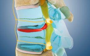 Gai cột sống có nguy hiểm không và những thông tin tổng quan về bệnh