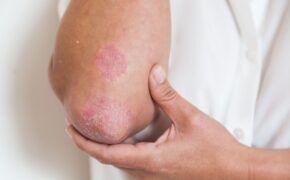 Nguyên nhân, dấu hiệu và cách điều trị viêm khớp vảy nến từ sớm