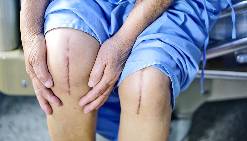 Phẫu thuật thay sụn khớp nhân tạo có thể mang đến những rủi ro khó kiểm soát được