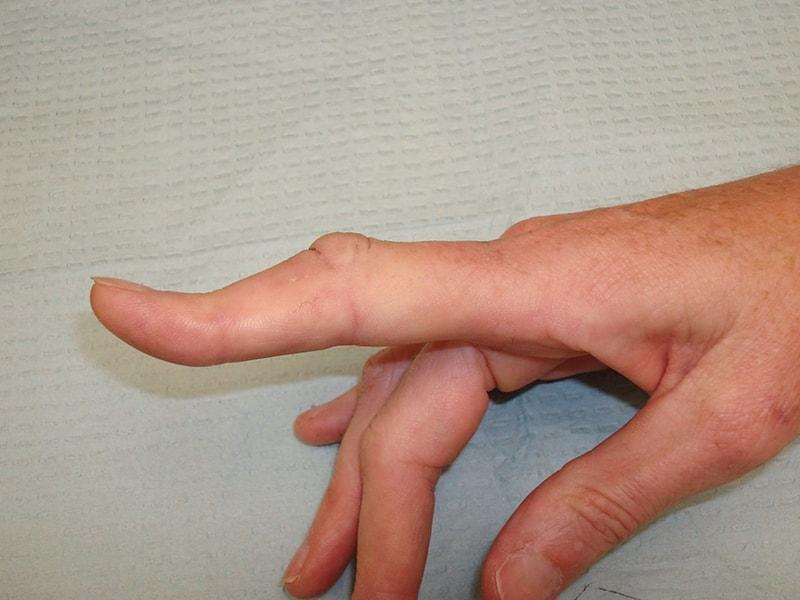 Khớp ngón tay bị biến dạng do thoái hóa