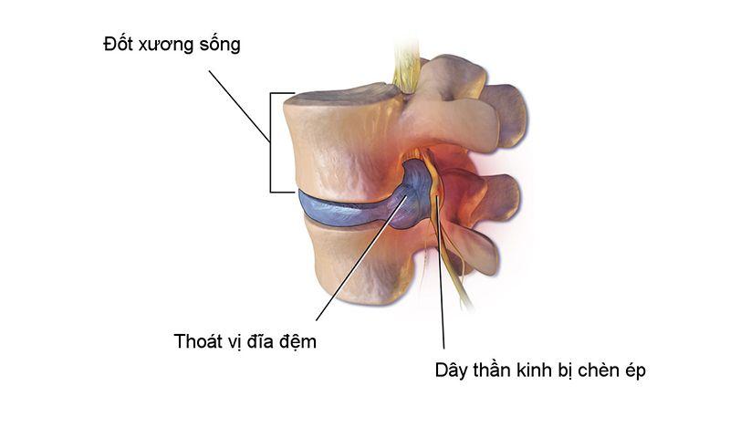 Đĩa đệm bị thoát vị gây chèn ép dây thần kinh, dẫn đến những cơn đau nhức dữ dội