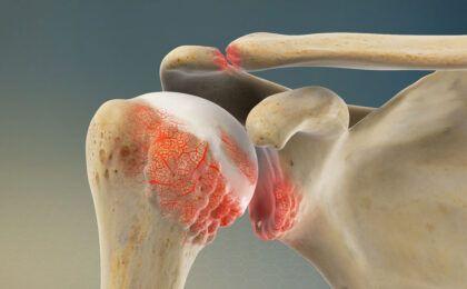 Thông tin về bệnh viêm khớp vai và cách điều trị hiệu quả