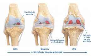 Yếu tố nguy cơ và biểu hiện của thoái hóa xương khớp