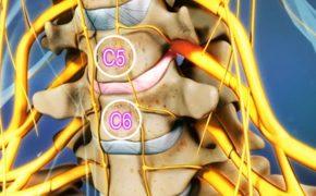Những thông tin quan trọng về bệnh thoát vị đĩa đệm cột sống cổ c5 c6