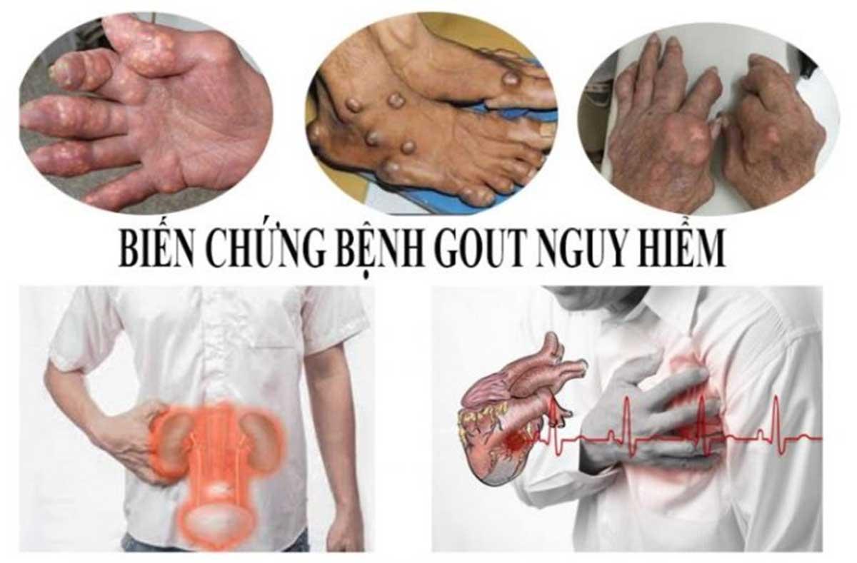 benh-gut_13