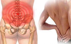 Bệnh gai cột sống thắt lưng là gì? Điều trị thế nào hiệu quả?