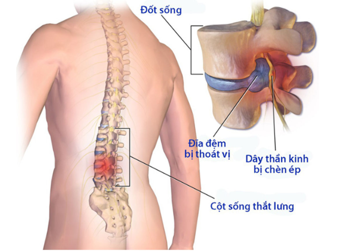thoai-hoa-cot-song-that-lung_1