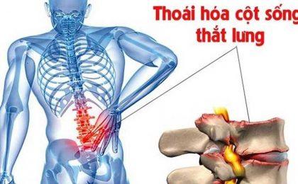 Thoái hoá cột sống thắt lưng: Nguyên nhân, triệu chứng và cách điều trị
