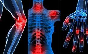 Thoái hóa xương: Nguyên nhân, triệu chứng và cách điều trị
