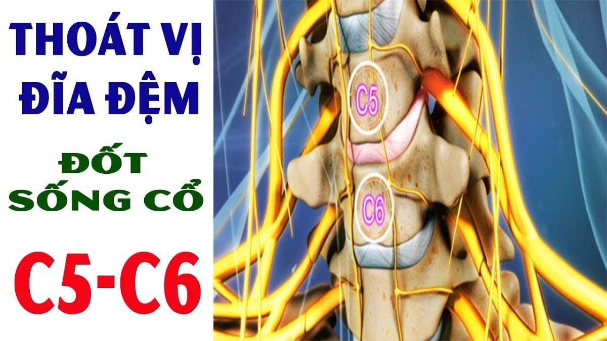 thoat-vi-dia-dem-cot-song-co-c5c61_1