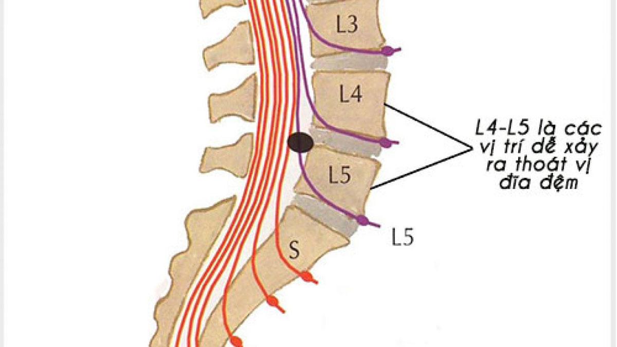 thoat-vi-dia-dem-cot-song-that-lung-l4-l5_1